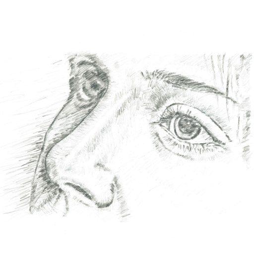 Anna – Septorhinoplasty